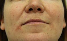 Powiększanie ust kwasem hialuronowym - Zdjęcie przed - dr n. med. Diana Kupczyńska