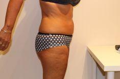 Laserová liposukce - Laserová liposukce a jiné ošetření alternativy liposukce, po 12 kúrách, úbytek 10 cm. Beauty studio Dana, Praha 9, objednejte se, výsledek vidíte ihned