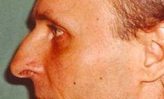 Plastika nosu (Rhinoplastika) - fotka před - MUDr. Michal Puls CSc. - MEDICOM Clinic