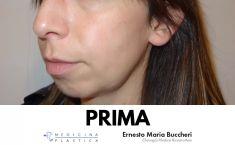 Profiloplastica (Rinoplastica e Mentoplastica) - Foto del prima - Dott. Ernesto Maria Buccheri