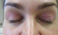 Plexr - Ošetření očních víček, neinvazivní blefaroplastika pomocí přístroje Plexr.