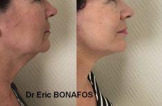 Dr Eric BONAFOS - Cliché avant - Dr Eric BONAFOS
