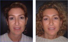 Fat transfer breast augmentation - Photo before - Dr Laurent Benadiba M.D