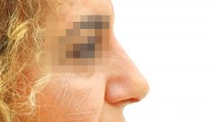 Nasenkorrektur - Rhinoplastik - Vorher Foto - doc. MUDr. M. Boháč PhD.