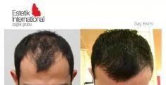 Hair Transplant - Photo before - Estetik International Health Group