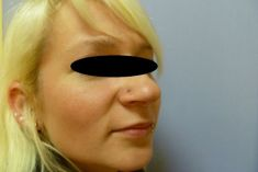 Plastika nosu (Rhinoplastika) - fotka před - MUDr. Kamila Šormová