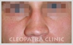 Rhinoplasty (Nose Job) - Photo before - Cleopatra Clinic, Klinika Plastické Chirurgie s.r.o.