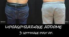 Liposuzione - Foto del prima - Dott. Ferdinando Rossano