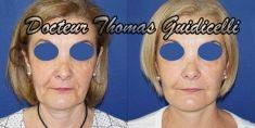 Lifting du visage - Cliché avant - Dr Thomas Guidicelli