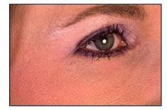 Nichtchirurgische Faltenbehandlung  - BOTOX® / DYSPORT® - Vorher Foto