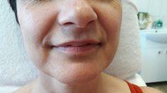 Operácia pier (Augmentácia) - Fotka pred - MediDerm & Slim