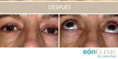 Cirugía de párpados (Blefaroplastia) - La cirugía de párpados también llamada la blefaroplastia, puede resolver el exceso de piel y bolsas de los párpados. No cambia la expresión facial, pero sí reanima la mirada.
