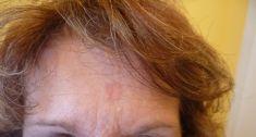 Odstranění znamének, kožních výrůstků - fotka před - MUDr. Hana Raková MBA