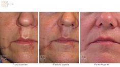 Narbenbeseitigung per Laser - Vorher Foto - Bieńkowscy Clinic®