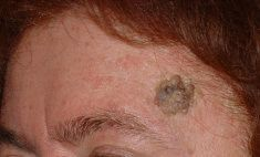 Mole removal - Photo before