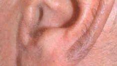 Laserová epilace, depilace - odstranění chloupků - fotka před - Klinika Laser Esthetic