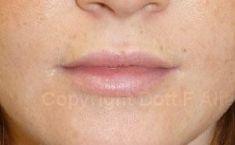 Aumento labbra - Foto del prima - Dott. Francesco Alia