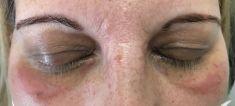 Odstranění xantelazmat (tuku na víčkách) - fotka před