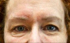 Mikrojehličková radiofrekvence - fotka před - Klinika estetické medicíny Petra Clinic