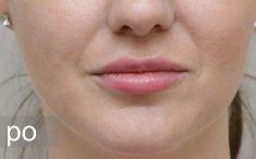 Lippenvergrößerung - Vorher Foto - Eveclinic Bratislava