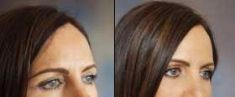 Botulinum toxin - Wrinkle Removal - Photo before - Tracey Bell Clinic