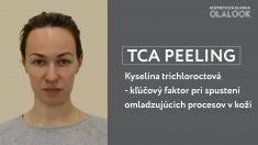 TCA peel - Procedúra kyselinového peelingu predstavuje kontrolované chemické poškodenie kože, ktoré ju stimuluje k exfoliácii zrohovatených vrstiev epidermy a k obnove kožných buniek. Jedným z najsilnejších stimulátorov dermálnych funkcií, ktorý sa používa na kontrolované poškodenie kože s cieľom stimullovať jej regeneráciu je kyselina trichloroctová (TCA). Terapia PRX-T33 nespôsobuje  tzv. frost efekt, pálenie a bolestivé pocity, nevyžaduje rehabilitačné obdobie. Táto terapia sa odporúča v akomkoľvek veku a poskytuje výborné výsledky pri korekcii nasledovných estetických nedostatkoch: ◽ foto a chronostarenie ◽ postakné ◽ atrofické jazvy ◽ strie ◽ príznaky narušenia pigmentácie ◽ melazmy a chloazmy ◽ hyperkeratóza pokožky tváre  Termín je možné objednať na http://fresha.com/olalook-haime5be/booking  *Výsledky ošetrenia sú individuálne a môžu sa líšiť od osoby k osobe