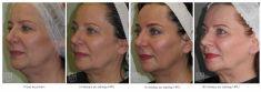 Ultherapy - Photo before - Dr Ilona Wnuk-Bieńkowska