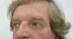 Operace očních víček (Blefaroplastika) - fotka před - MUDr. Ludmila Fialová