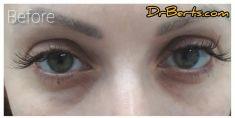 - Photo before - Dr Alberto Leguina-Ruzzi MD PhD
