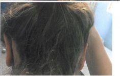 Operácia uší (Otoplastika)   - Fotka pred - Chirkoz Medical Clinic