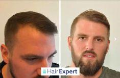 HairExpert - transplantace vlasů s doživotní zárukou - Se službami HairExpert a transplantací v Istanbulu jsem byl velmi spokojen. Tým lékařů odvedl skvělou práci. Necítil jsem žádnou bolest a výsledky zákroku jsou opravdu vidět! Společně s vlasy jsem si nechal implantovat také 1.500 vousů. Výsledek je skvělý!  Tomáš A. - 32 let   2.950 štěpů vlasy, 1.500 vousy