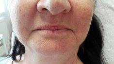 """Teosyal, Restylane, Esthelis, Juverdem, Surgiderm (preparáty kyseliny hyaluronovej) - Klientka má aplikovaný TEOSYAL RHA 2 - 1 ml kyseliny haylurónovej do nosovo-ústnych vrások, fotografia """"po"""" je fotená hneď po zákroku"""