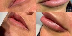 Aumento labbra con Permalip - Aumento labbra Permalip risultato dopo 20 giorni