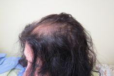 Dr. Alexis Enamorado Rodrìguez - injerto de pelo ,técnica FUE.