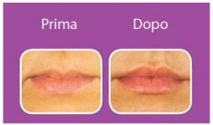 Aumento labbra - Foto del prima - Dott. Pier Andrea Cicogna