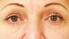 Augenlidstraffung - Unterlidstraffung