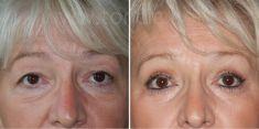Eyelid surgery (Blepharoplasty) - Photo before - Poliklinika za estetsku kirurgiju Dr. Tončić