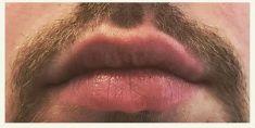 Výplně na bázi kyseliny hyaluronové - fotka před - Neo Beauty Clinic