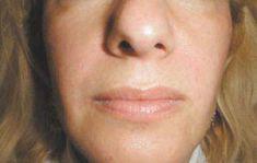 Laserové odstranění kožních výrůstků - fotka před - LaserPlastic