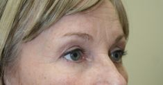 Eyelid surgery (Blepharoplasty) - Photo before - Dr. Nasim Huq M.S., FRCSC, M.Sc.,F.A.C.S. C.A.Q.S.H.