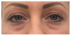 Injekční výplně - fotka před - Neo Beauty Clinic