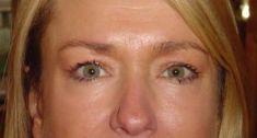 Operace očních víček (Blefaroplastika) - fotka před - Lékařský dům Praha 7