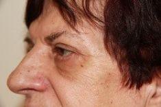 Operácia očných viečok (Blepharoplastika) - Fotka pred - MUDr. Viliam Jurášek