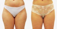Ultrasonic liposuction - Photo before