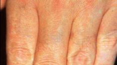 Laserové odstranění tetování a pigmentací - fotka před - LaserPlastic