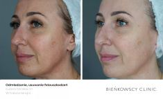 Fotorejuvenation  - Photo before - Bieńkowscy Clinic®