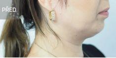 Výplně na bázi kyseliny hyaluronové - Výplň brady a dolní čelisti pomocí kyseliny hyaluronové (švýcarský výplň Neauvia). Byly upravené padající kontury obličeje a omlazena tvář. Foto před a po ošetření. Archiv: MUDr. Věra Terzijská - Veramedica