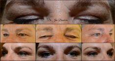 Operácia očných viečok (Blepharoplastika) - Operácia očných viečok (Blepharoplastika) horných viečok