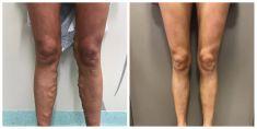 Laserová operace křečových žil - fotka před - MUDr. Radek Vyšohlíd