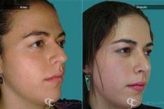 Cirugía de la nariz (Rinoplastia) - Paciente con nariz grande y Rinocifosis después  de la rinoplastia vemos una nariz natural armónica al rostro